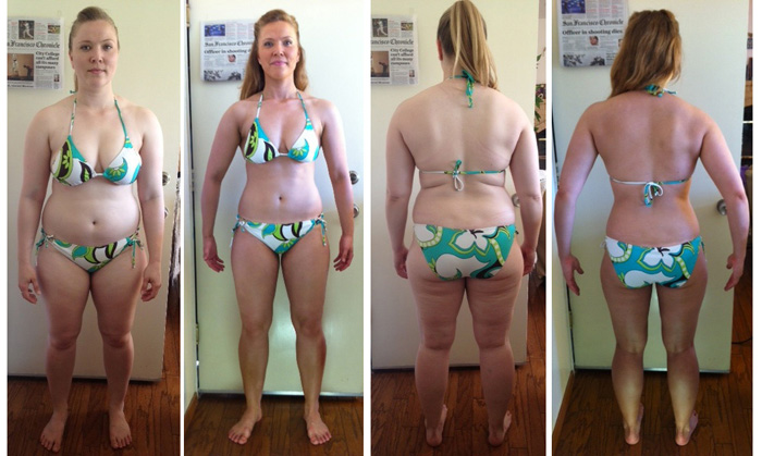 Weight loss operation in india image 3